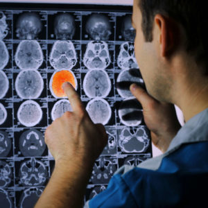 a person points at a highlighted scan among a grid of black and white brain images